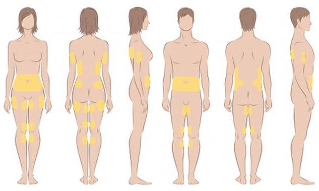 Bereiche Cellulite Behandlung