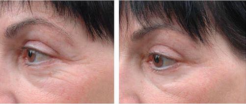 Anti-Aging Behandlung Falten Augenbereich