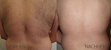 Haarentfernung Rücken